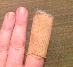 Wodge off my finger