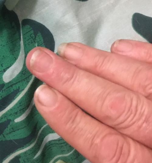 My finger