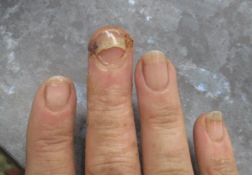 Finger at five weeks